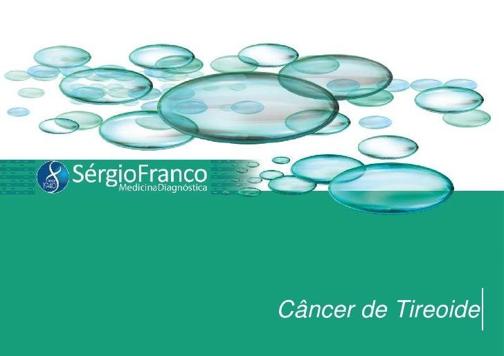 Câncer de Tireoide<br />