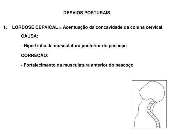 DESVIOS POSTURAIS<br />LORDOSE CERVICAL = Acentuação da concavidade da coluna cervical.<br />CAUSA: <br />- Hipertrof...