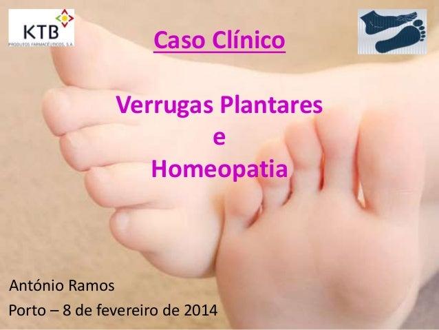 Caso Clínico Verrugas Plantares e Homeopatia António Ramos Porto – 8 de fevereiro de 2014