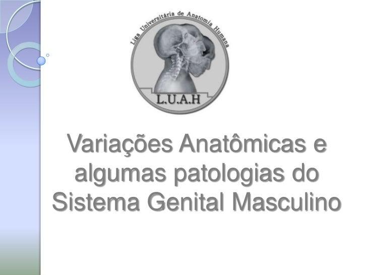 Variações Anatômicas e  algumas patologias doSistema Genital Masculino