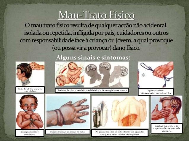 Alguns sinais e sintomas:  Puxão dos cabelos, trauma no couro cabeludo.  Criança amarrada e amordaçada.  Síndrome da crian...