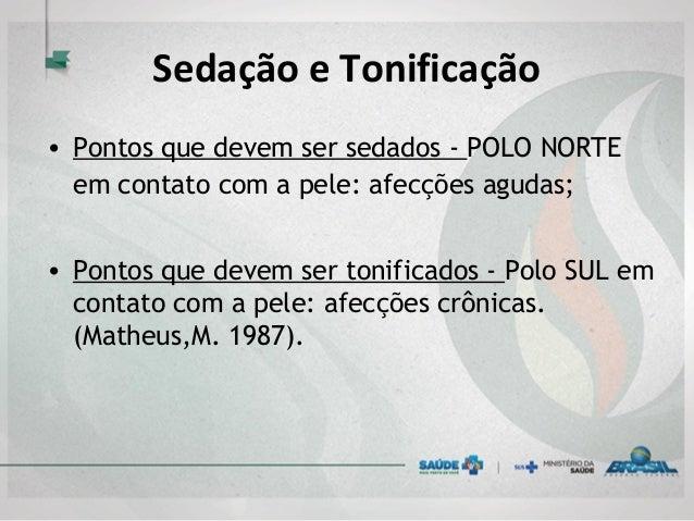 Sedação e Tonificação • Pontos que devem ser sedados - POLO NORTE em contato com a pele: afecções agudas;  • Pontos que d...