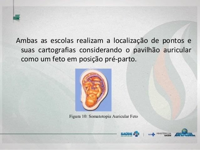 Ambas as escolas realizam a localização de pontos e suas cartografias considerando o pavilhão auricular como um feto em po...