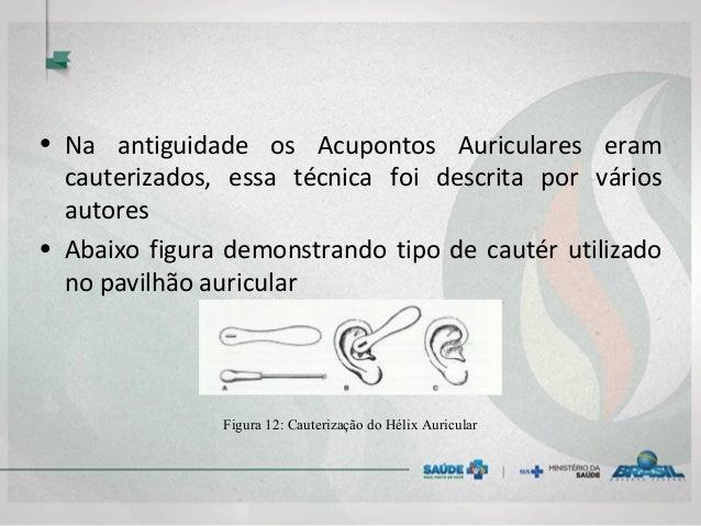 • Na antiguidade os Acupontos Auriculares eram cauterizados, essa técnica foi descrita por vários autores • Abaixo figura ...