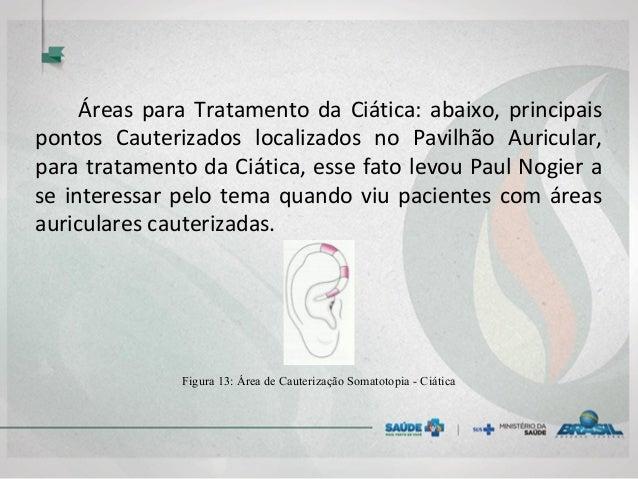 Áreas para Tratamento da Ciática: abaixo, principais pontos Cauterizados localizados no Pavilhão Auricular, para tratament...