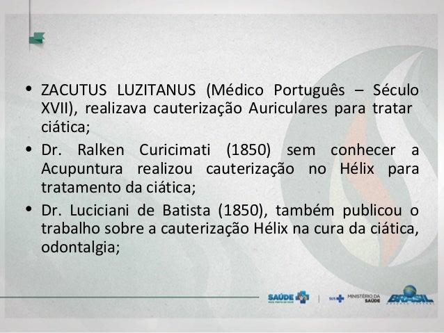 • ZACUTUS LUZITANUS (Médico Português – Século XVII), realizava cauterização Auriculares para tratar ciática; • Dr. Ralken...