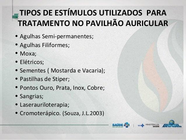 TIPOS DE ESTÍMULOS UTILIZADOS PARA TRATAMENTO NO PAVILHÃO AURICULAR • Agulhas Semi-permanentes; • Agulhas Filiformes; • Mo...