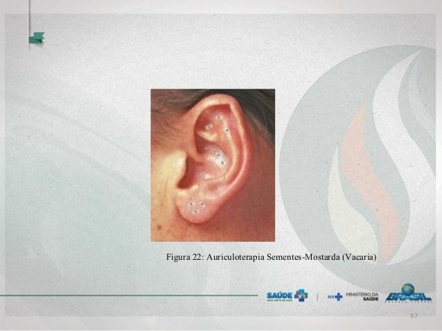 Figura 22: Auriculoterapia Sementes-Mostarda (Vacaria) 97