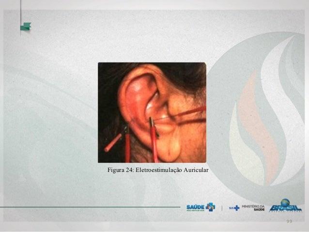 Figura 24: Eletroestimulação Auricular 99