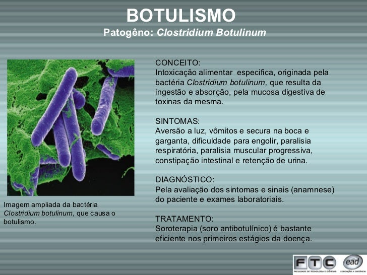 Imagem ampliada da bactéria  Clostridium botulinum , que causa o botulismo. BOTULISMO  Patogêno:  Clostridium Botulinum CO...