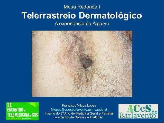 Mesa Redonda I Telerrastreio Dermatológico A experiência do Algarve Francisco Vilaça Lopes fvlopes@acesbarlavento.min-saud...