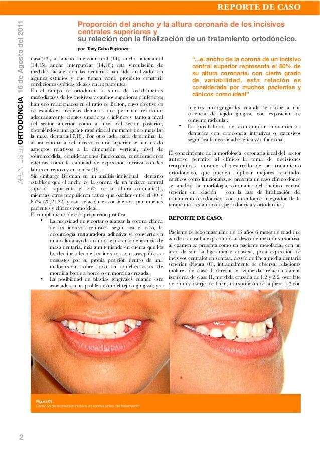 2 nasal(13), al ancho intercomisural (14), ancho intercantal (14,15), ancho interpupilar (14,16); esta vinculación de medi...