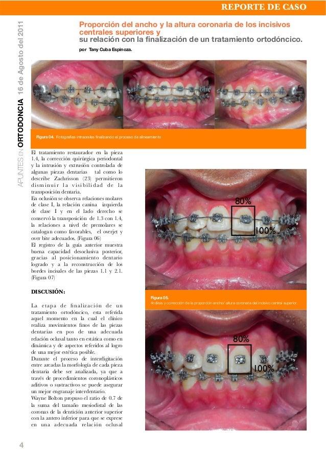 4 El tratamiento restaurador en la pieza 1.4, la corrección quirúrgica periodontal y la intrusión y extrusión controlada d...