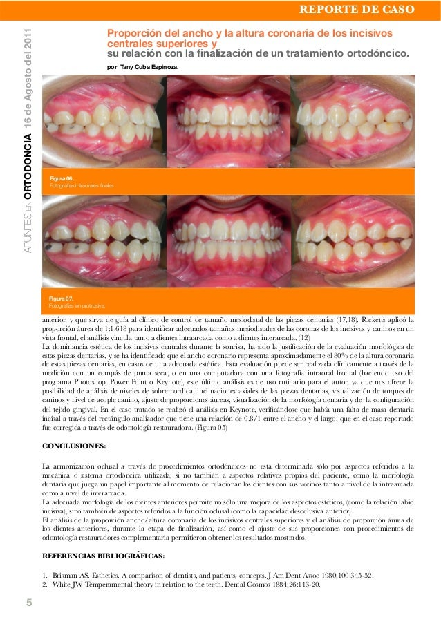 5 anterior, y que sirva de guía al clínico de control de tamaño mesiodistal de las piezas dentarias (17,18). Ricketts apli...