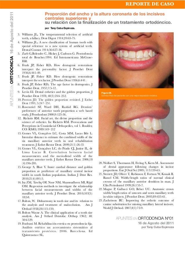 3. Williams JL. The temperamental selection of artificial teeth, a fallacy. Dent Digest 1914;20:63-75. 4. Williams JL. A ne...