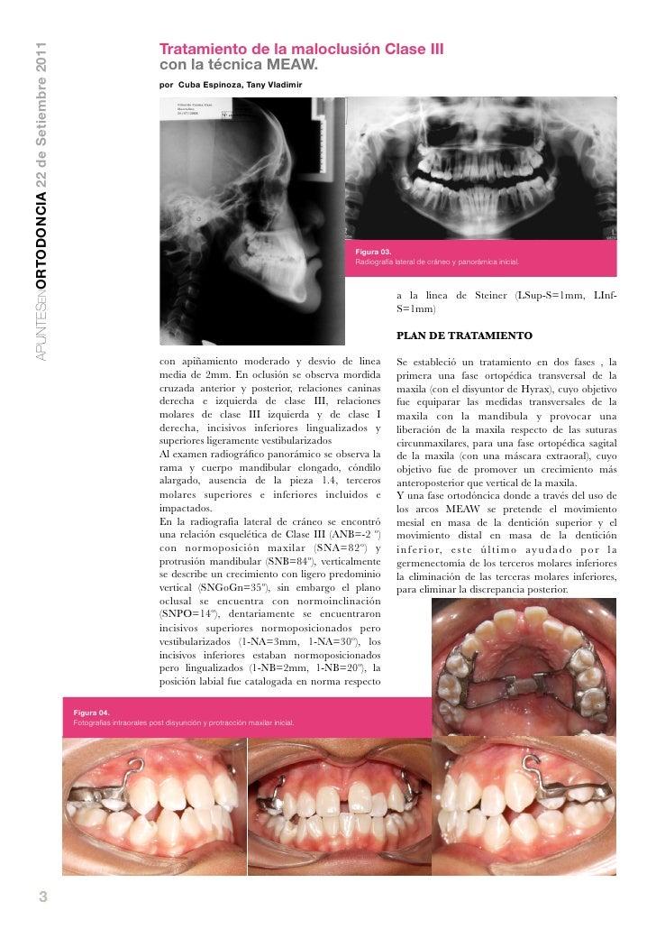 Tratamiento de la maloclusión Clase IIIAPUNTESENORTODONCIA 22 de Setiembre 2011                                           ...