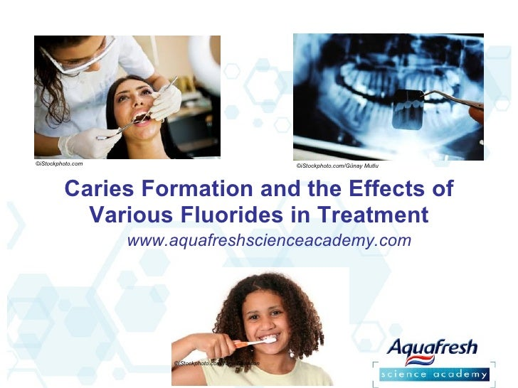 Caries Formation and the Effects of Various Fluorides in Treatment ©iStockphoto.com  ©iStockphoto.com/Günay Mutlu  ©iStock...