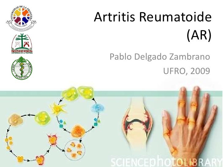 Artritis Reumatoide (AR)<br />Pablo Delgado Zambrano<br />UFRO, 2009<br />