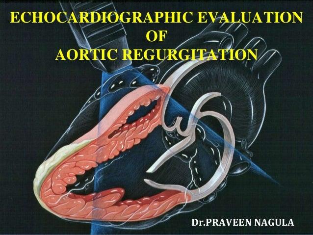 ECHOCARDIOGRAPHIC EVALUATION OF AORTIC REGURGITATION