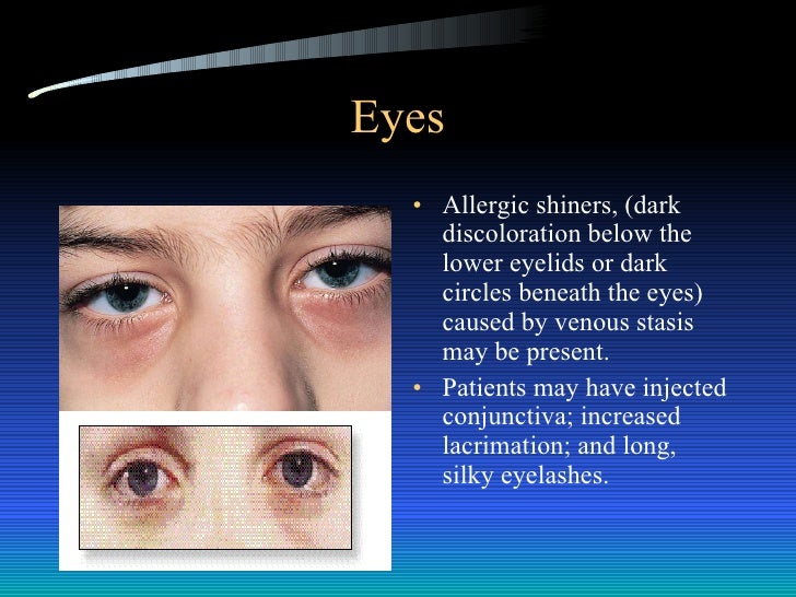 Allergy shiner