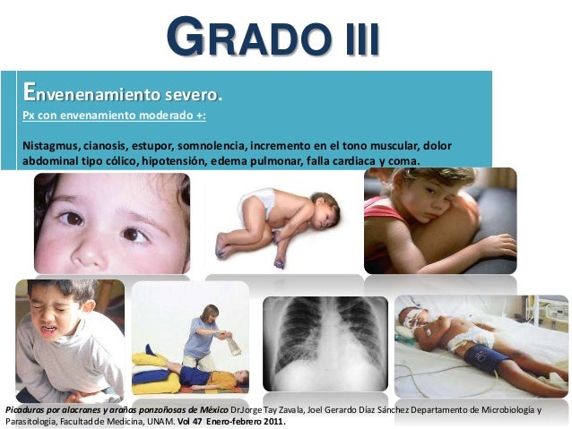 GRADO III Envenenamiento severo. Px con envenamiento moderado +: Nistagmus, cianosis, estupor, somnolencia, incremento en ...