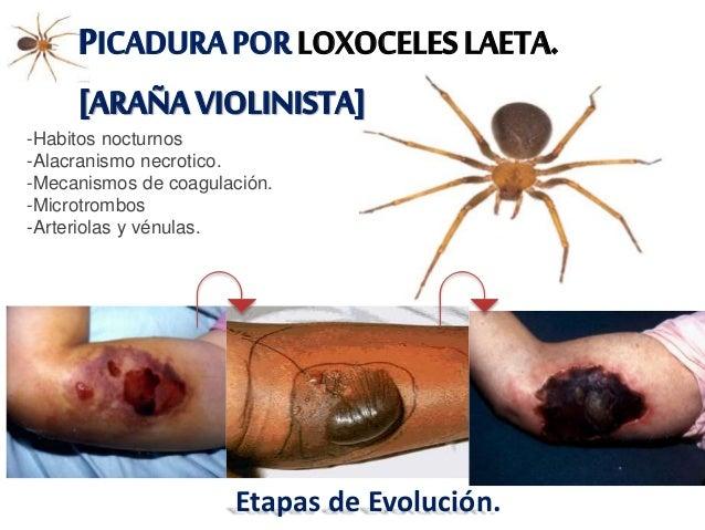 CUADROCLÍNICO -Cutanea Simple. -Cutanea Viceral-Sitemica. -Locales: • Picadura Indolora. • Vesiculas 2-8 hrs desp. • Dolor...