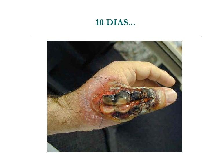 Mulltyidiomas: Dicionário Português-Alemão Para …