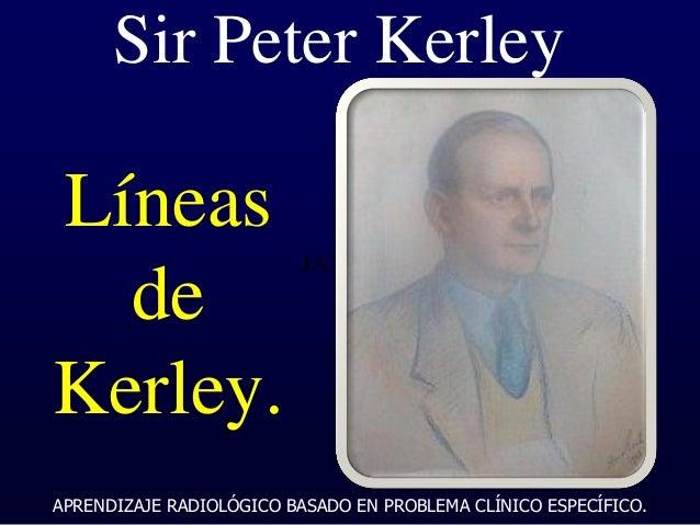 ARBPCE 2014 Lineas de Kerley Slide 3
