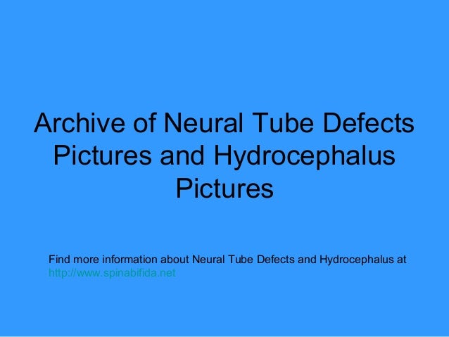 Archive of Neural Tube DefectsPictures and HydrocephalusPicturesFind more information about Neural Tube Defects and Hydroc...