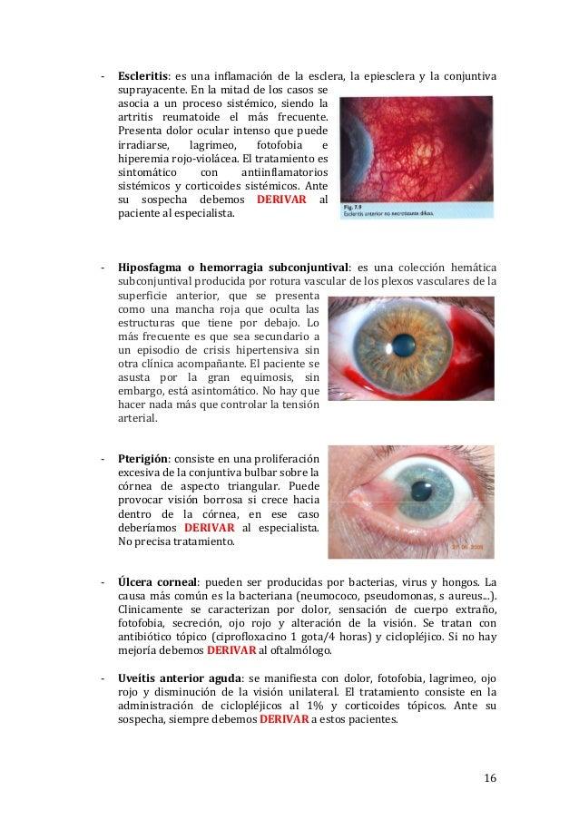 2017-03-07) Patología ocular en Atención primaria (DOC)