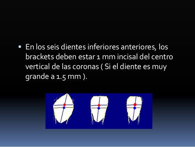 Etapa final  Arcos ligeros de nitinol ó trensado rectangular ( Braided ) .019 x .025 con elásticos verticales cortos.