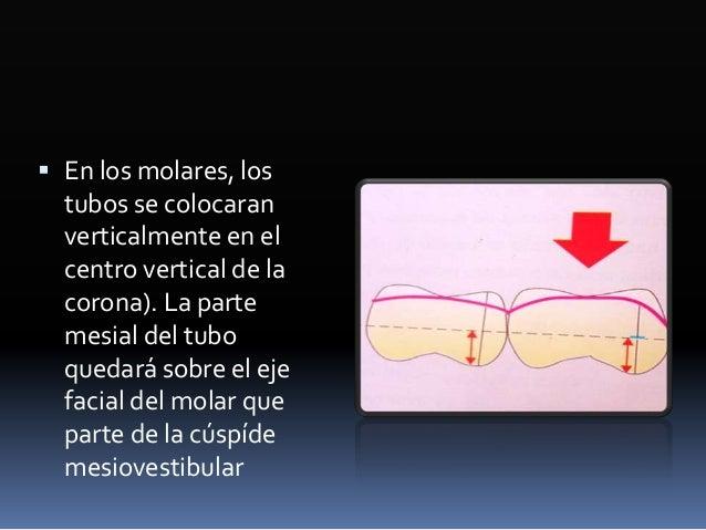 Objetivos  Alinear y nivelar los arcos dentarios  Obtener el encastrado completo de los arcos desde un .014 nitinol hast...