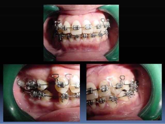 Fase III  Consolidación y estabilización  Optimizar la sobrecorrección individual dentaria y de los segmentos de acuerdo...