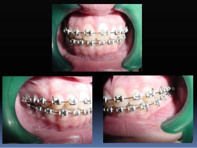  En casos donde la mordida esté abierta ó tienda a abrirse en la nivelación podremos bandear los segundos molares hasta l...