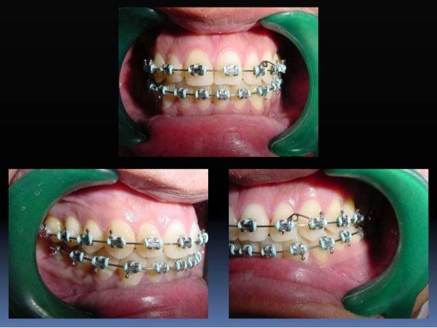 Fase II-2. Refuerzo de anclaje  Arco transpalatal  Omega distal