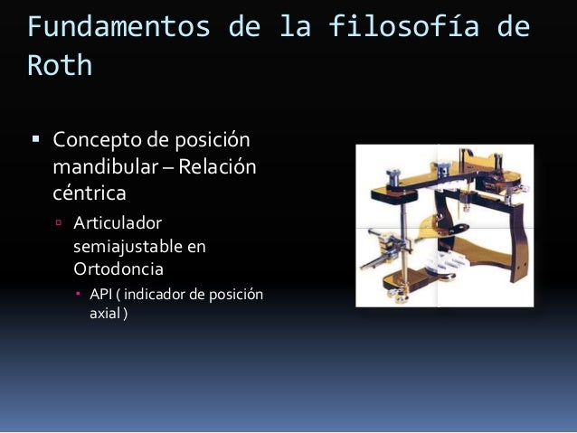 Fundamentos de la filosofía de Roth  Concepto de posición mandibular – Relación céntrica  Articulador semiajustable en O...