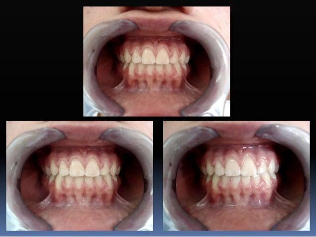 Fase II-2. Refuerzo de anclaje  Microimplantes ó microtornillos ortodónticos  Tamaño  1.2 mm de diámetro  6 a 12 mm. d...