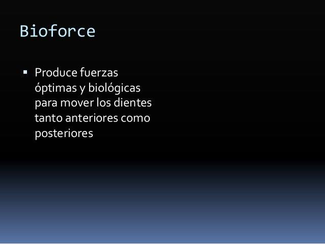 Fase II-2. Refuerzo de anclaje  Microimplantes ó microtornillos ortodónticos  Composición  Titanio aleación tipoV  Bio...