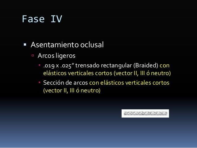 Fase II-2. Refuerzo de anclaje  Microimplantes ó microtornillos ortodónticos  Colocación de la guía quirúrgica
