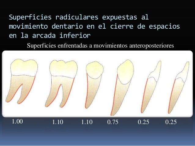 """ Interfase (si es necesario)  Renivelación  .018 x .025"""" ó .019 x .025"""" Nitinol"""