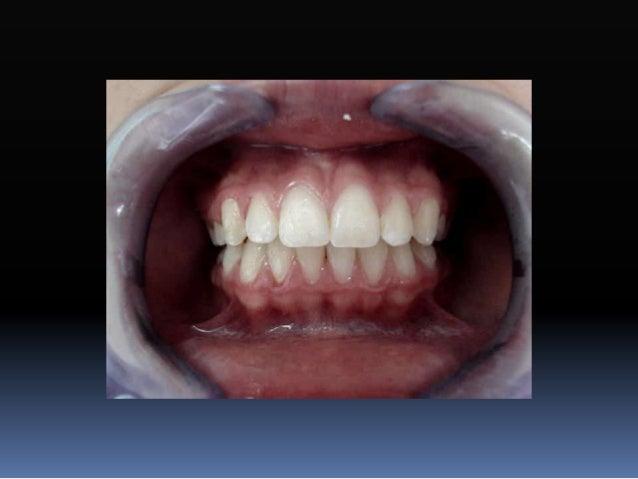 Disco articular Ligamento temporomandibular