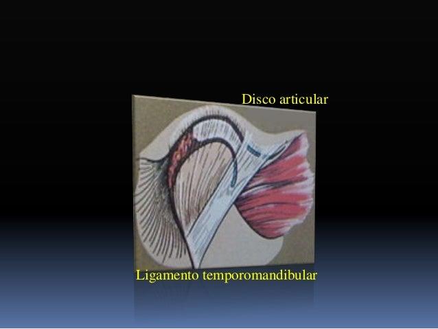 Distraccion condilar  Posición hacia abajo y hacia atrás que adquiere el cóndilo dentro de la cavidad glenoidea producto ...