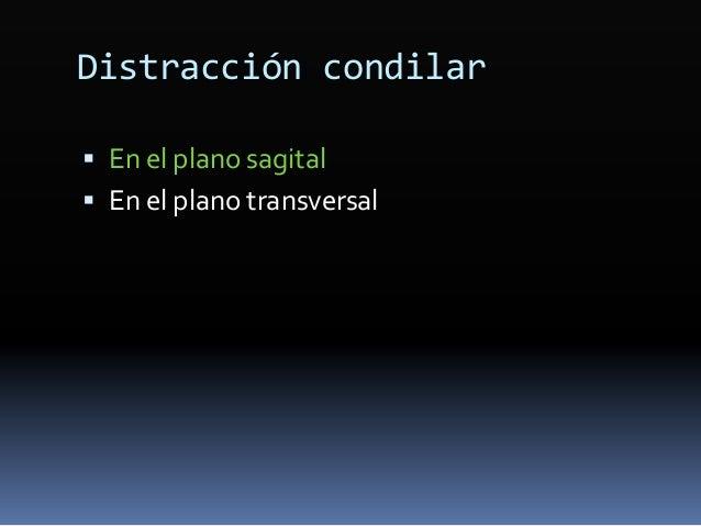 Estudio de la trayectoria de cierre entre la posición de reposo postural y la oclusión en el plano transversal  Anomalías...