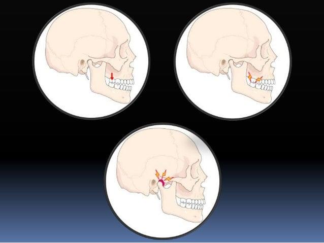 Desprogramación  Obtensión de tentativa de céntrica  Montaje en articulador  Férula de miorelajación