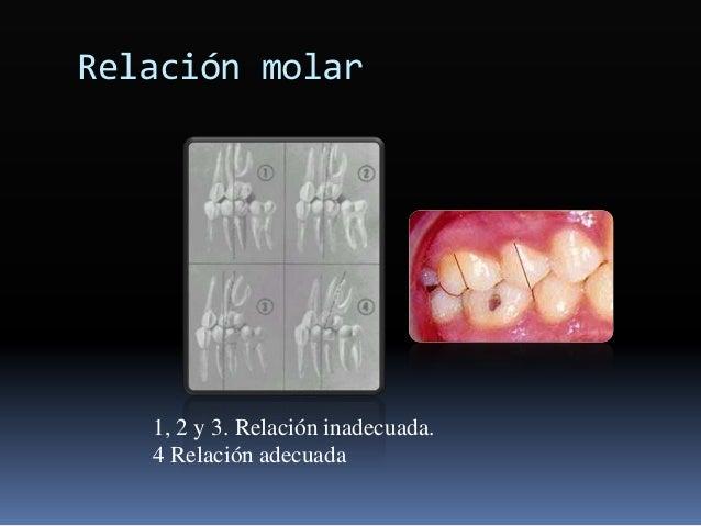 Relación molar 1, 2 y 3. Relación inadecuada. 4 Relación adecuada