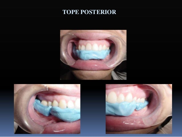 Objetivos para obtener una oclusión funcional ideal  La oclusión céntrica se ha de producir con la mandíbula en relación ...