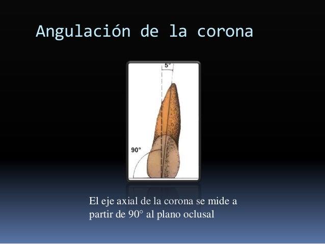 Angulación de la corona El eje axial de la corona se mide a partir de 90° al plano oclusal