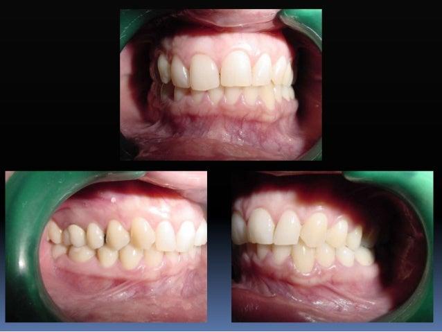 Objetivos para obtener una oclusión funcional ideal  La estructura dentaria, la posición de los dientes y la forma oclusa...