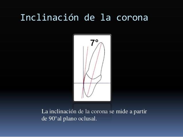 Inclinación de la corona La inclinación de la corona se mide a partir de 90°al plano oclusal.