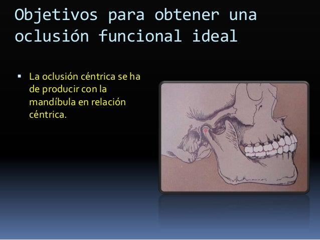  Casos severos de clase II  En pacientes que han pasado la fase de crecimiento puberal  Discrepancias esqueletales verd...
